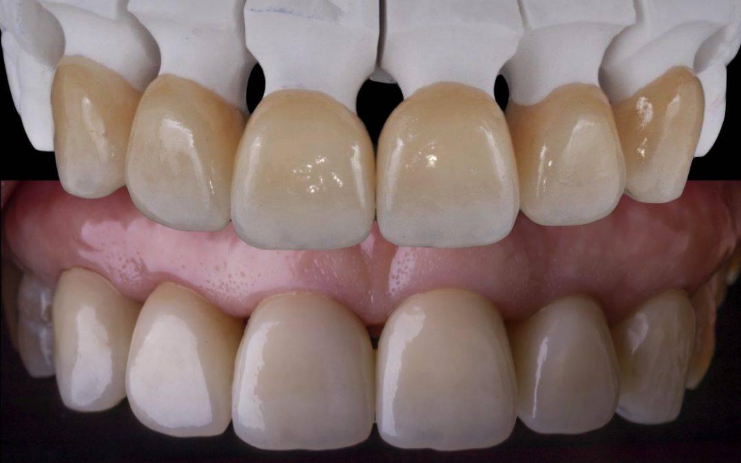 Protesi dentale fissa e mobile